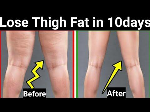 தொடையில் உள்ள கொழுப்பை குறைக்க Simple Home Exercise for Men&Women in Tamil/Lose Thigh Fat in Tamil