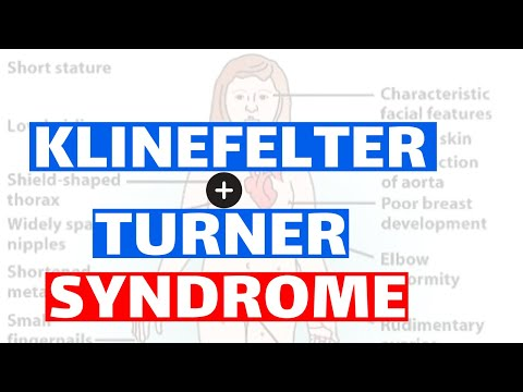 Klinefelter & Turner Syndrome - Pathology,  Clinical Features, Diagnosis, And Treatment.