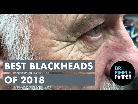 Best Blackheads 2018