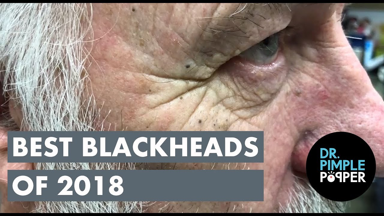 best blackheads 2018