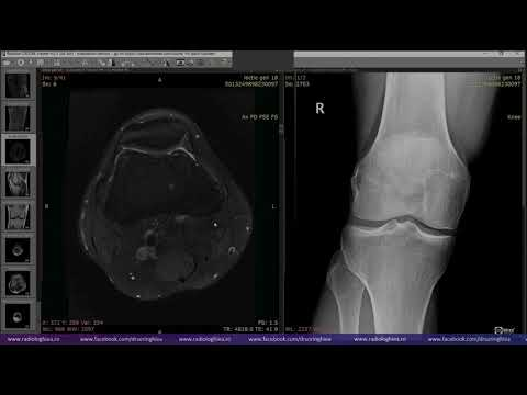 bursita unguentă a articulației cotului tratamentul homeopatiei gonartrozei genunchiului