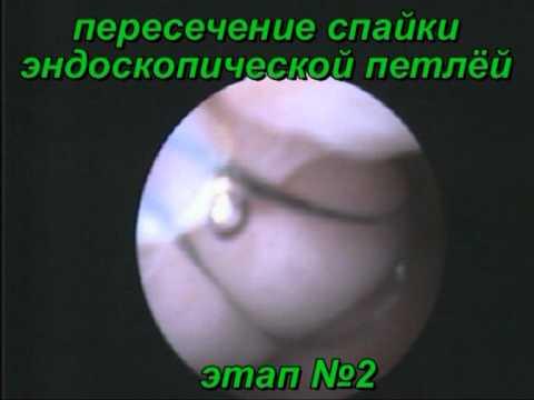 Полип матки (эндометрия): удаление, лечение, симптомы