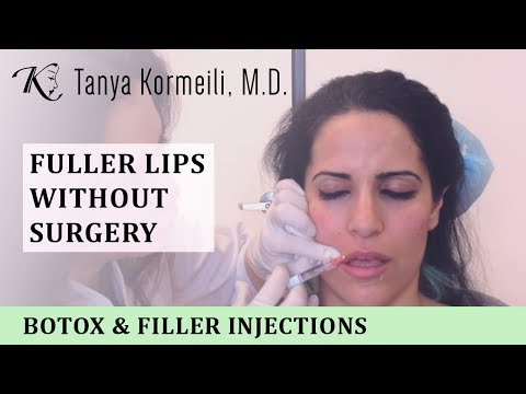 Fuller Lips without Surgery