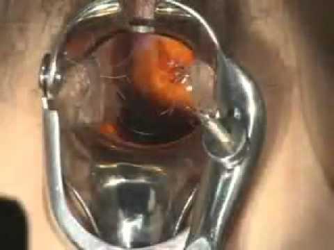 Endometrial Biopsy Video
