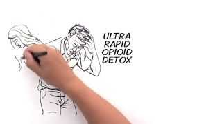 Advances in Rapid Opioid Detox Treatment 2014