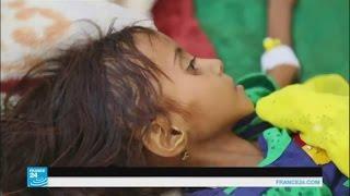 موت طفل يمني كل عشر دقائق بسبب سوء التغذية وانتشار الأمراض