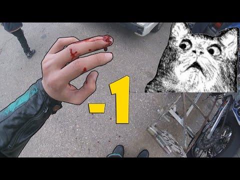 Мотоциклисту оторвало часть пальца! 18+