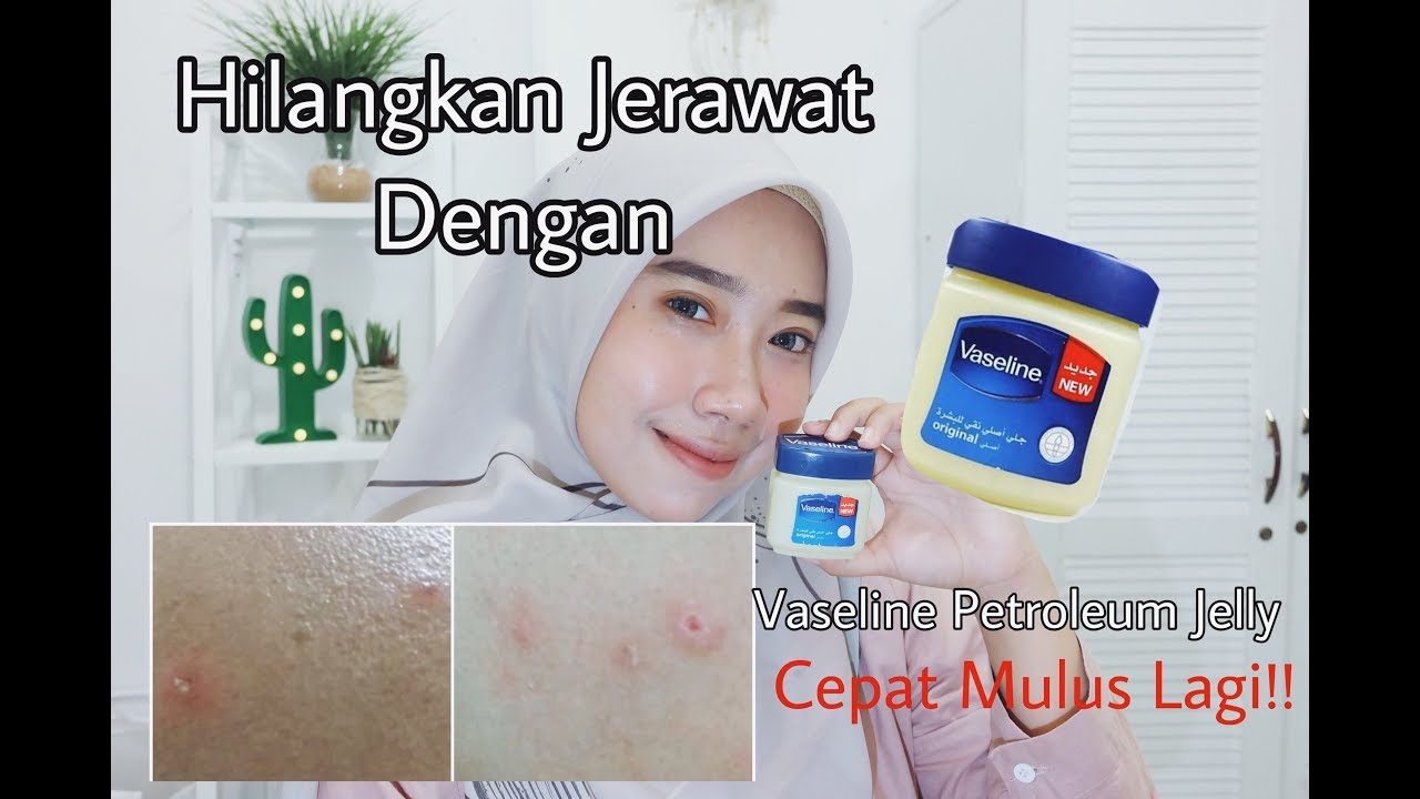 Cara Hilangkan Jerawat Cepat Tanpa Bekas Dengan Vaseline Petroleum Jelly Review Vaseline Arab Youtube