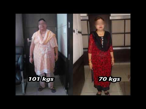 Control on Diabetes after MGB||Weight loss surgery||Metabolic surgery||Dr.Kular