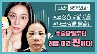 [성형 브이로그] 코수술, 얼굴 지방흡입, 눈밑 지방재…