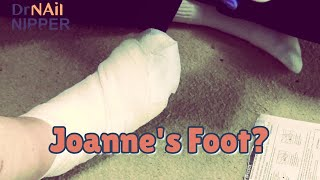 Is it time for Joanne s Foot Care How does lymphoma start Dr Nail Nipper makes a Visit 2021