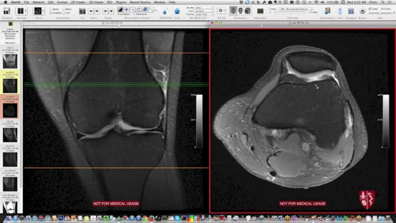 Systematic Interpretation of Knee MRI: Supplemental Cases - YouTube