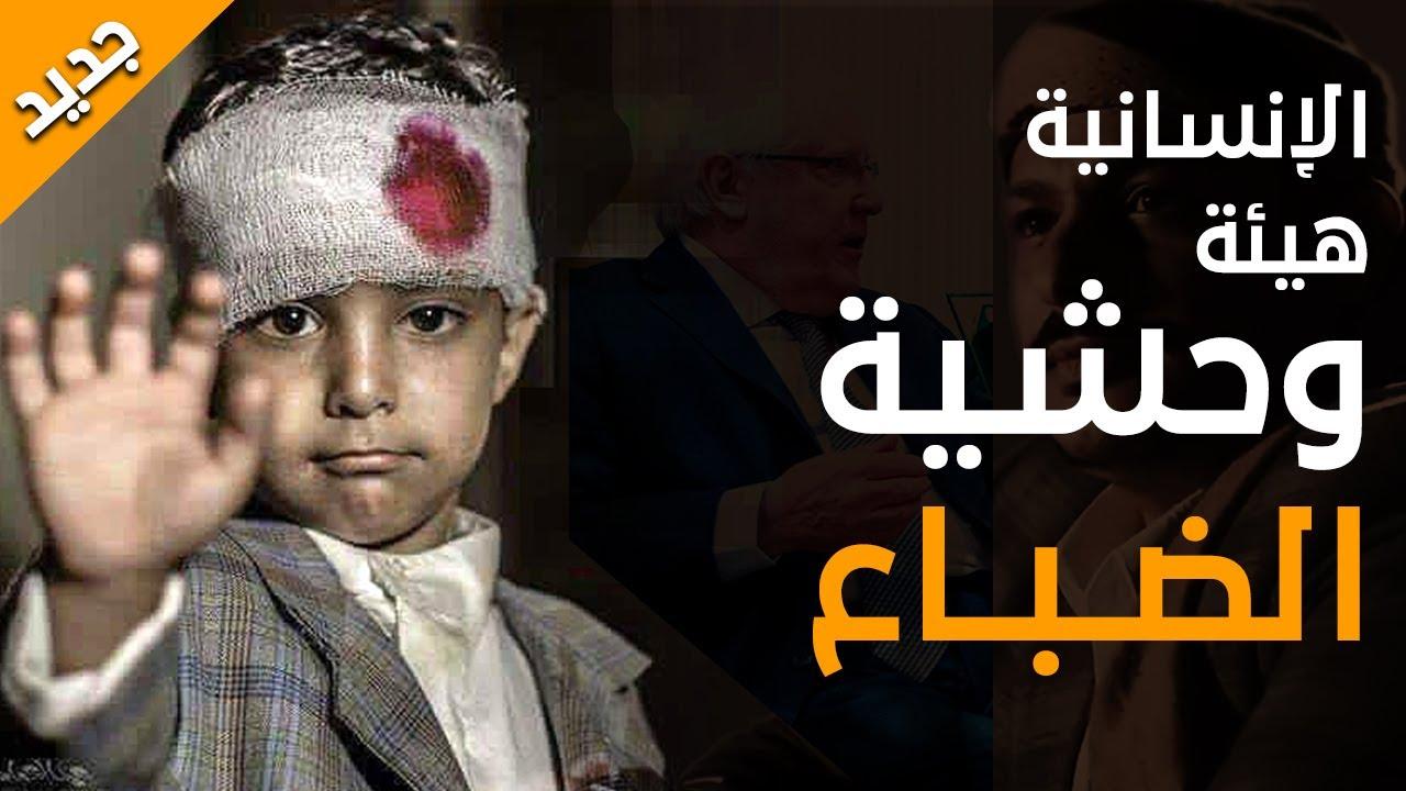 زامل يمني جديد بكلمات من ذهب يفضح الأمم المتحدة وبقية الضباع   عيسى الليث 2020 باللكلمات