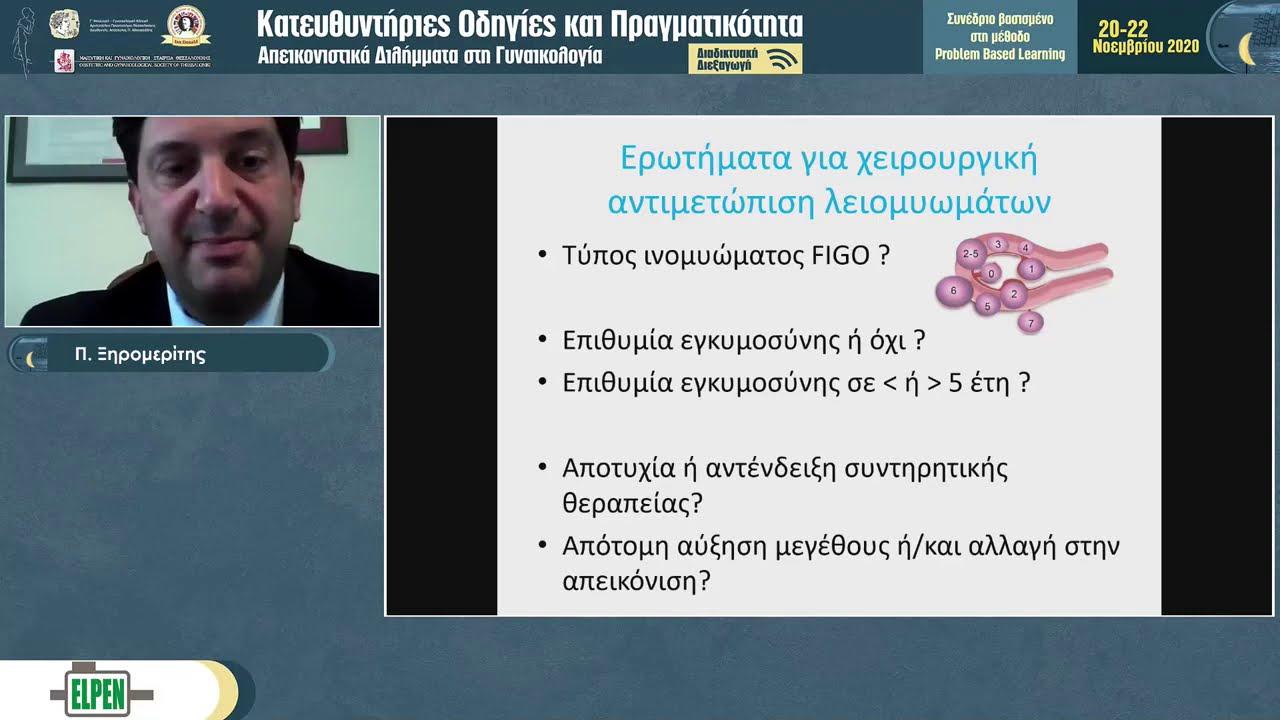 Κριτήρια χειρουργικής αντιμετώπισης ινομυωμάτων - διαδικτυακή ομιλία του Dr Π . Ξηρομερίτη