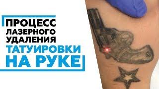 Удаление тату на руке в Ростове-на-Дону #удалениетатуажаростов #удалениетатуростов