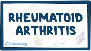 Rheumatoid arthritis - causes, symptoms, diagnosis, treatment, pathology
