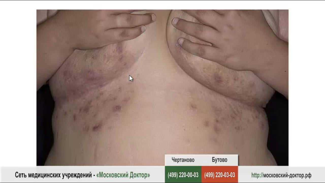 Аллергия на груди, под грудью - YouTube
