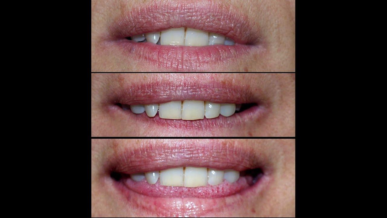 Hongos en los labios dela boca imagenes