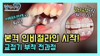 1-29.⭐치과위생사 치아교정 일기⭐ 어태치먼트 부착 …
