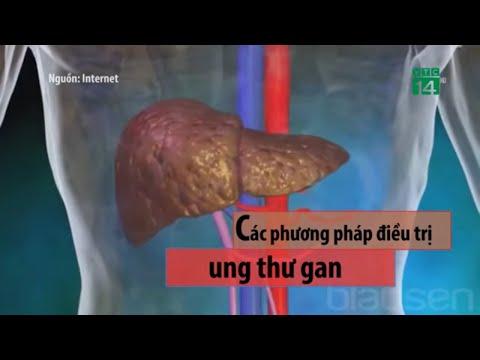 Các phương pháp điều trị ung thư gan  VTC14