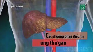 Các phương pháp điều trị ung thư gan| VTC14
