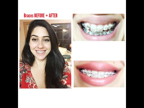 ADULT BRACES BEFORE AND AFTER PROGRESS PHOTOS + POWER CHAIN