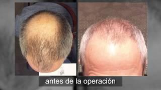 Resultados de 1 año - Microinjerto Capilar Clinicana - Isidro