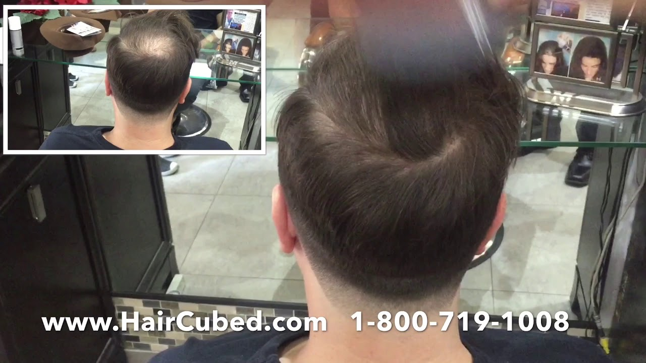 Edgefull Com And Naturally Cover Up Thinning Hairline