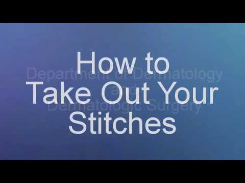 How to Take Out Your Stitches after Skin Procedures
