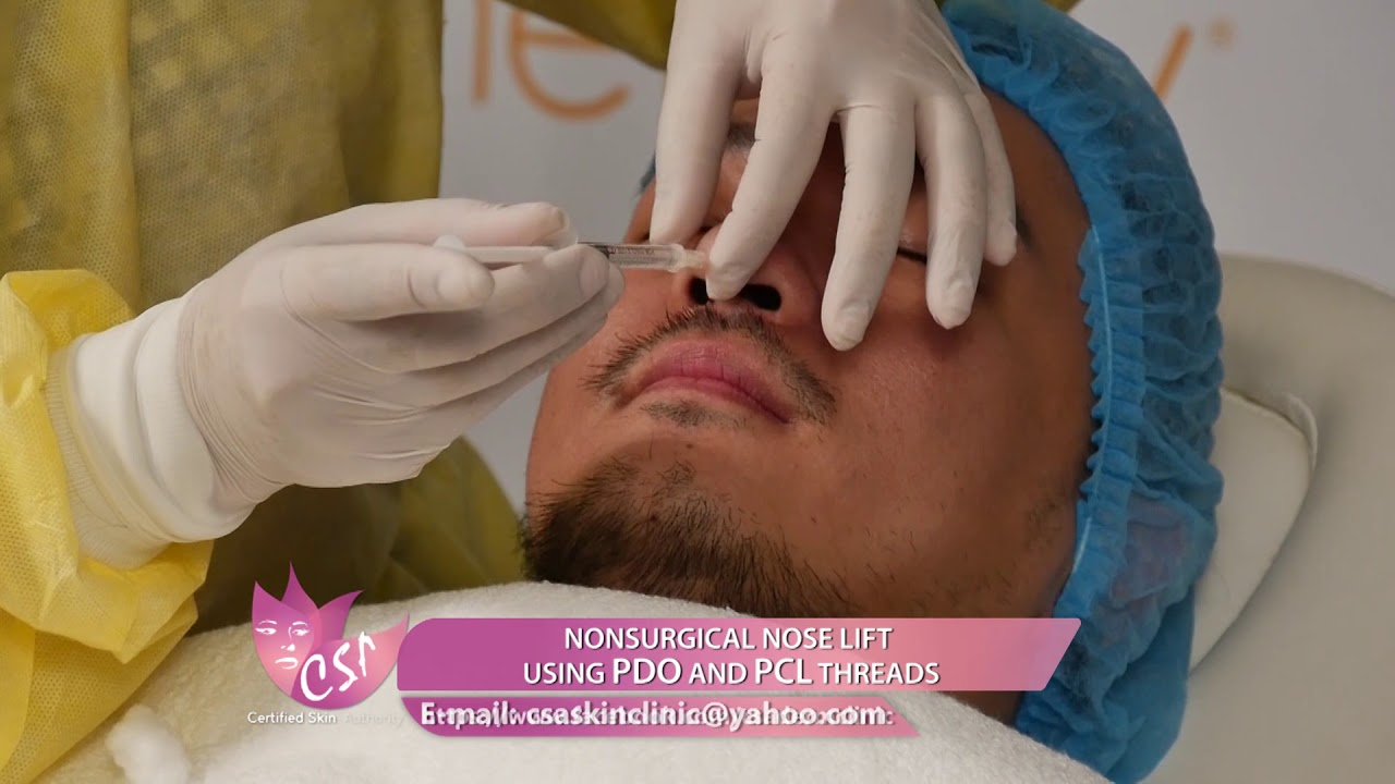 NONSURGICAL NOSE LIFT USING PDO AND PCL THREADS for men