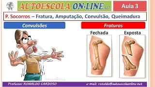 31 PRIMEIROS SOCORROS - Febre, Lesão na Coluna; Fraturas; Queimaduras