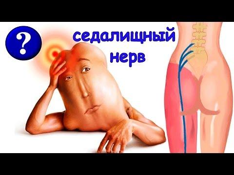 Защемление седалищного нерва: симптомы, лечение