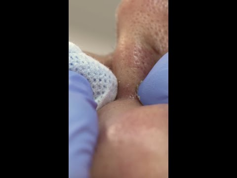 What Pimple Popping Extractions Look Like Up Close #shorts