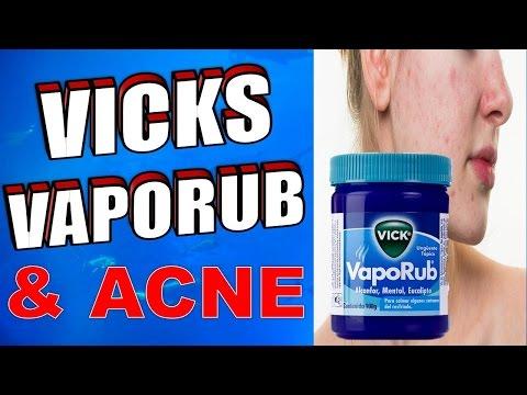 hqdefault - Vicks Vapor Rub On Deep Pimples