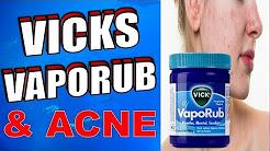 hqdefault - Using Vicks On Cystic Acne