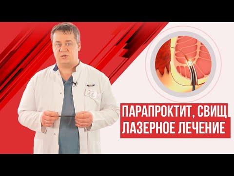 Острый парапроктит и свищ прямой кишки. Лазерное лечение.
