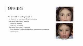 Intermittent Exotropia Characteristics
