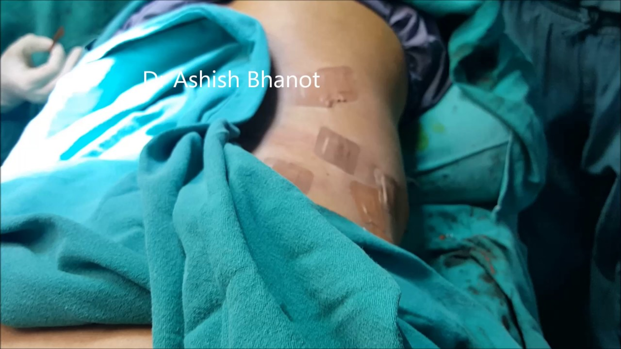 Scars after Lipoma Treatment with Dr Ashish Bhanot