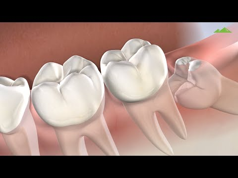 wisdom-teeth-removal-in-provo-ut-|-utah-surgical-arts