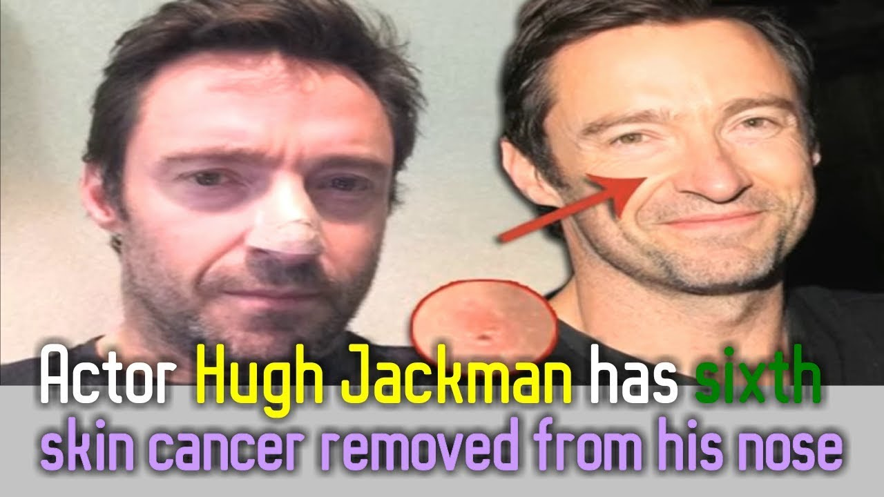 Actor Hugh Jackman Has Sixth Skin Cancer Removed From His Nose Youtube