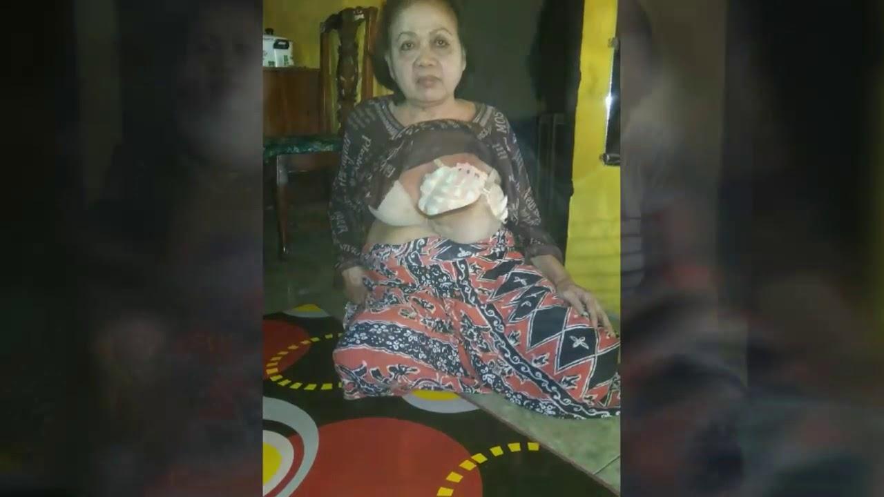 Penderita kanker Payudara Stadium 4 Asal Pagaden Ingin ...