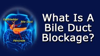 What Is A Bile Duct Blockage?