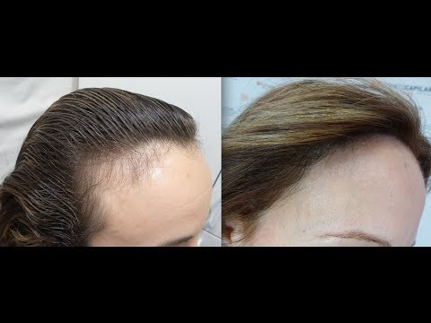 1401 FU's. Hair Transplant by FUE Technique. Forehead ...