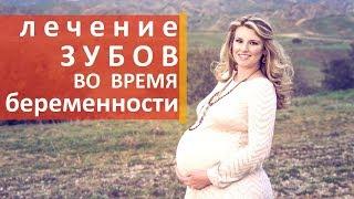 Лечение зубов при беременности. 🍏 Как лечат зубы во время беременности. Мать и Дитя(, 2017-12-13T21:00:02.000Z)