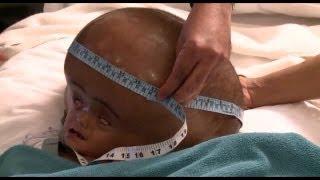 Repeat youtube video 水頭症の印少女 手術に成功