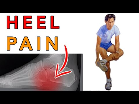Dr. Michael Horwitz : Revolutionary Treatment For Your Heel Pain