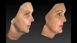 Facelift 3D Before and After - 9