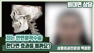 [비대면상담 #40]  저 안면윤곽수술 효과 볼까요?