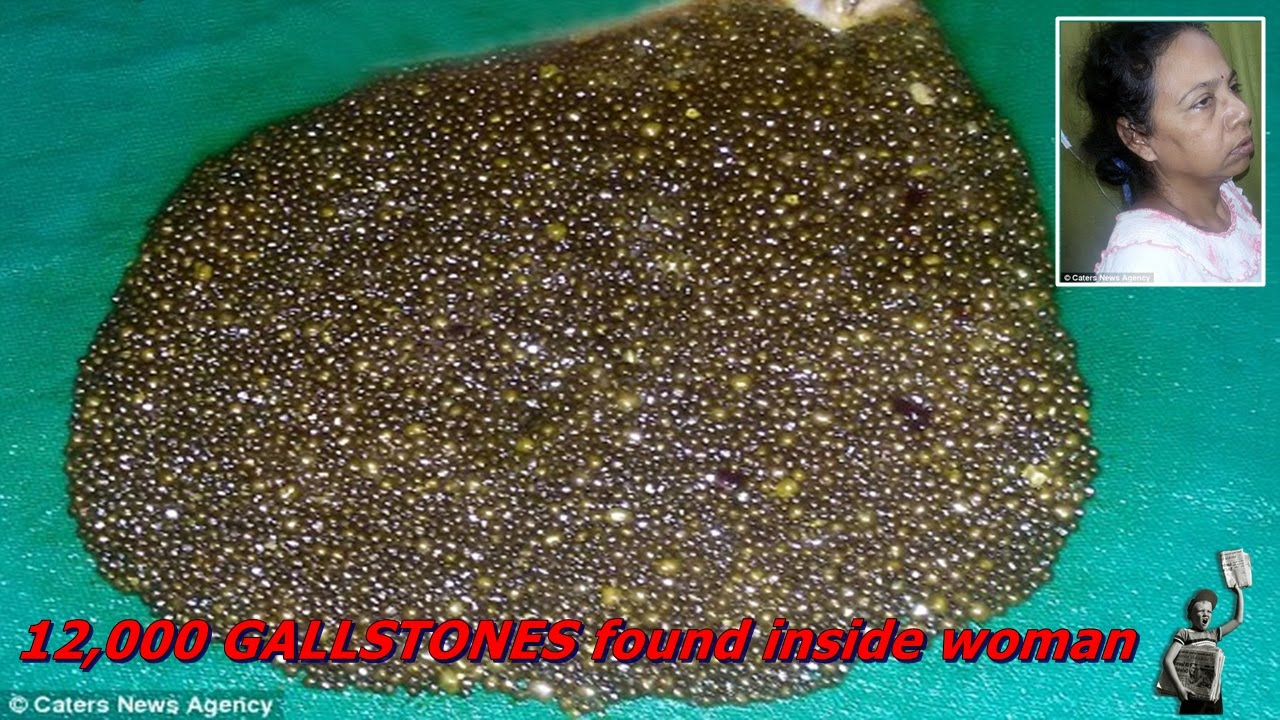 12000 Gallstones Found Inside Woman Suffering Stomach Ache And