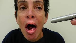 Lingual Dyskinesia